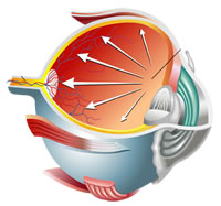 Glaucoma Cherokee